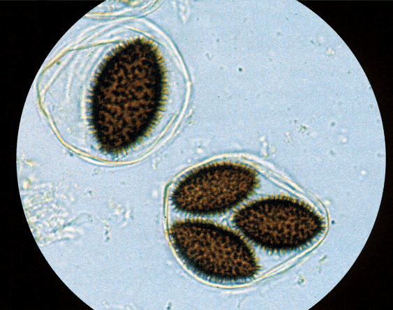 Tuber Melanosporum Vittadini (Spore)